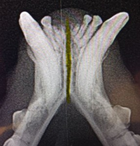 Fractured Jaw x-ray highlight